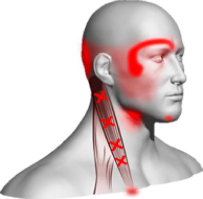 Fizio GP - Problemi kralježnice - bolovi u vratu
