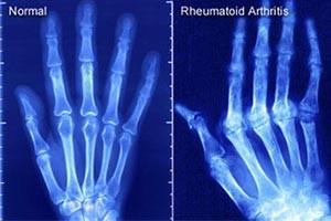 Fizio GP - reumatoidni artritis
