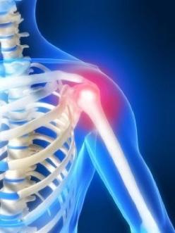 Fizio GP - bolovi u ramenu