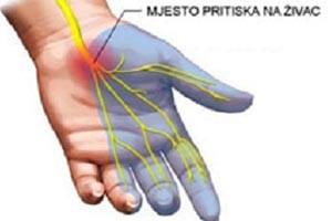 Fizio GP - sindrom karpalnog tunela
