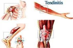 Fizio GP - tendinitis/bursitis